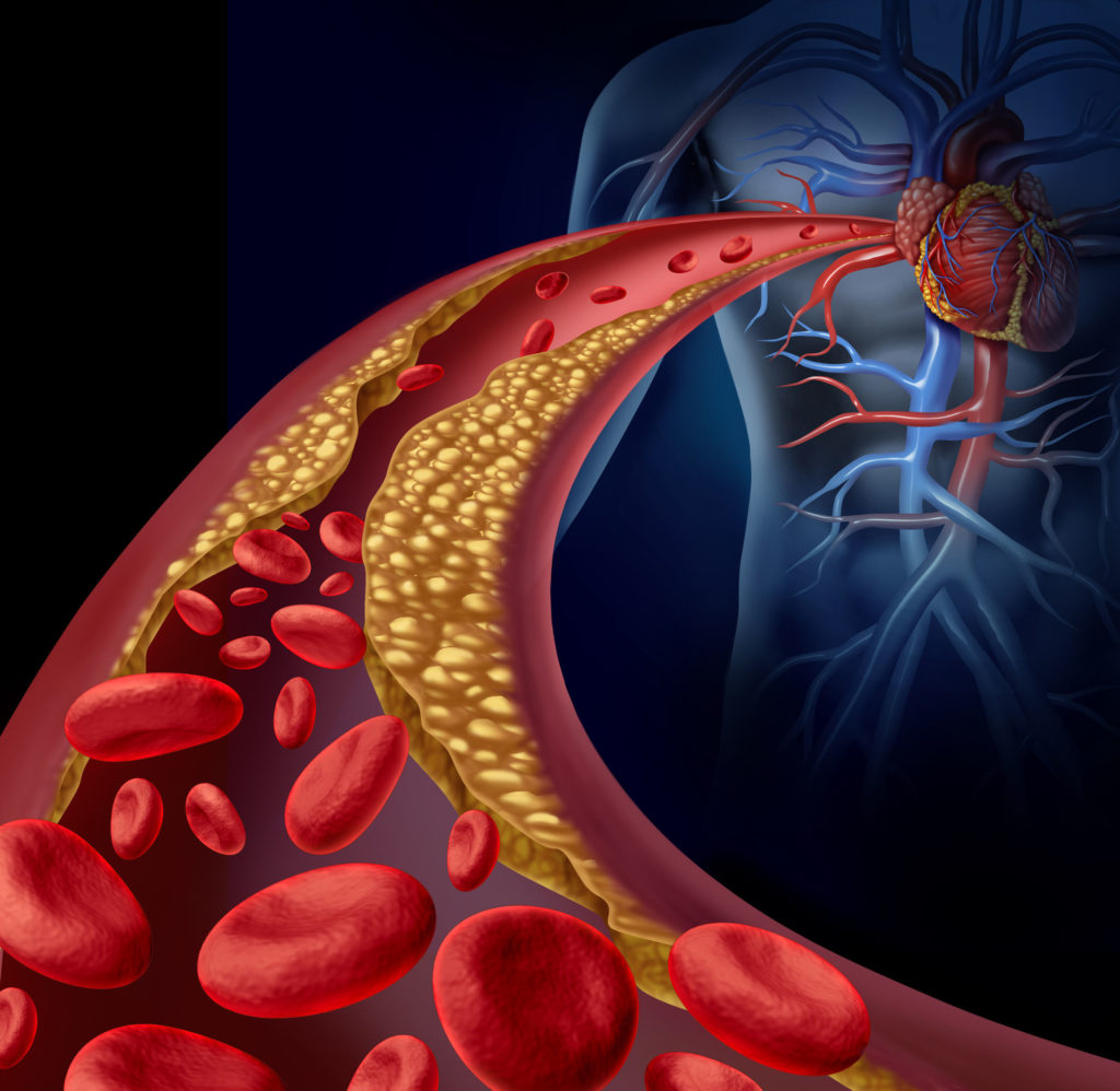 heart health functional medicine